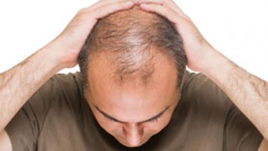 Buy Generic Propecia For Hairloss Treatment