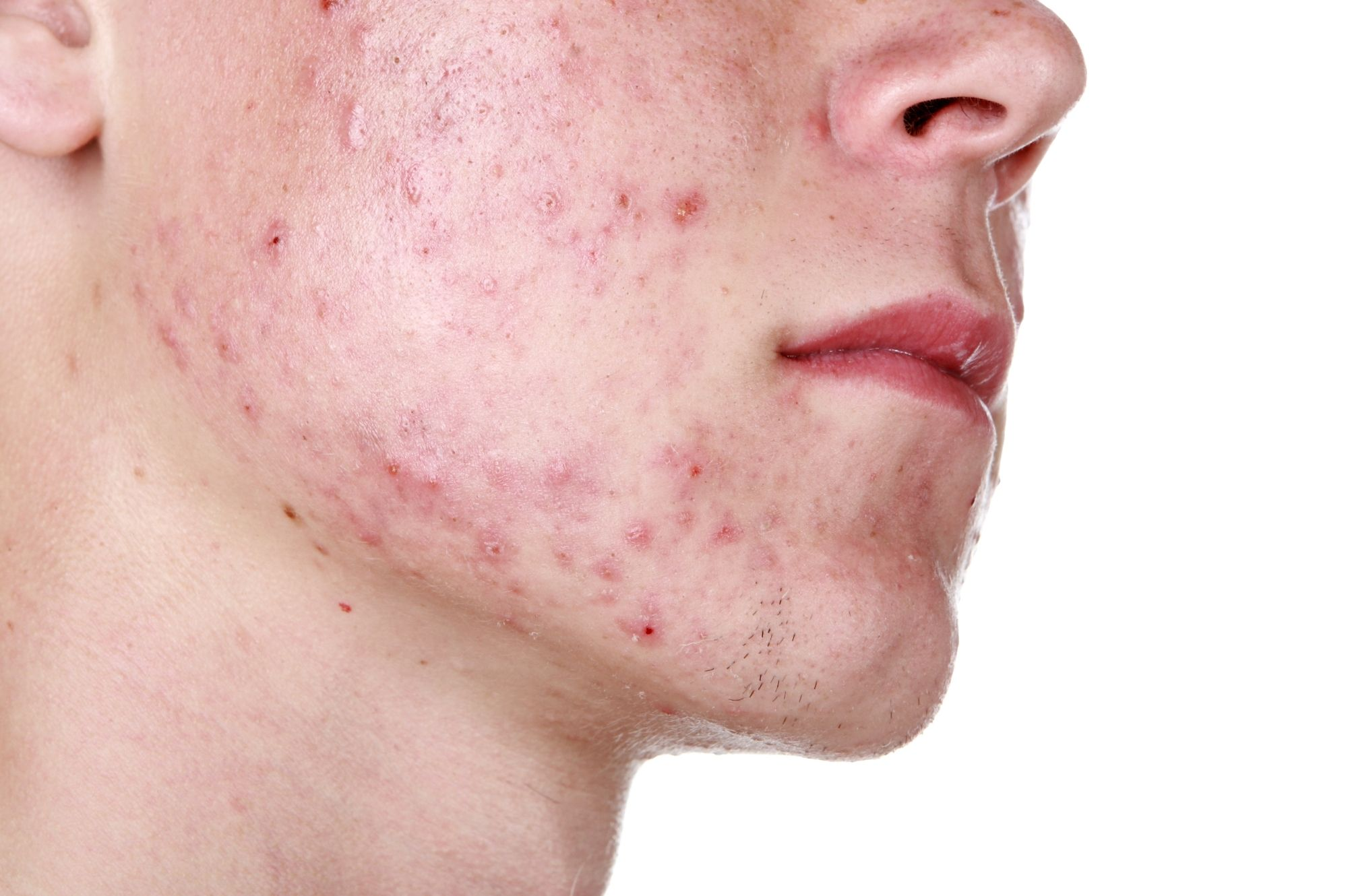 Buy Azelex Online For Acne