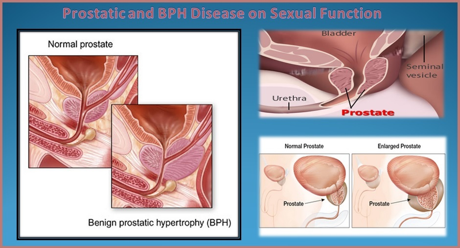 Effect of Prostatic and BPH Disease